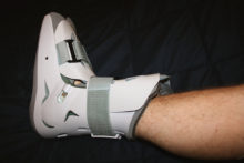 Acupressure for Hairline Fracture