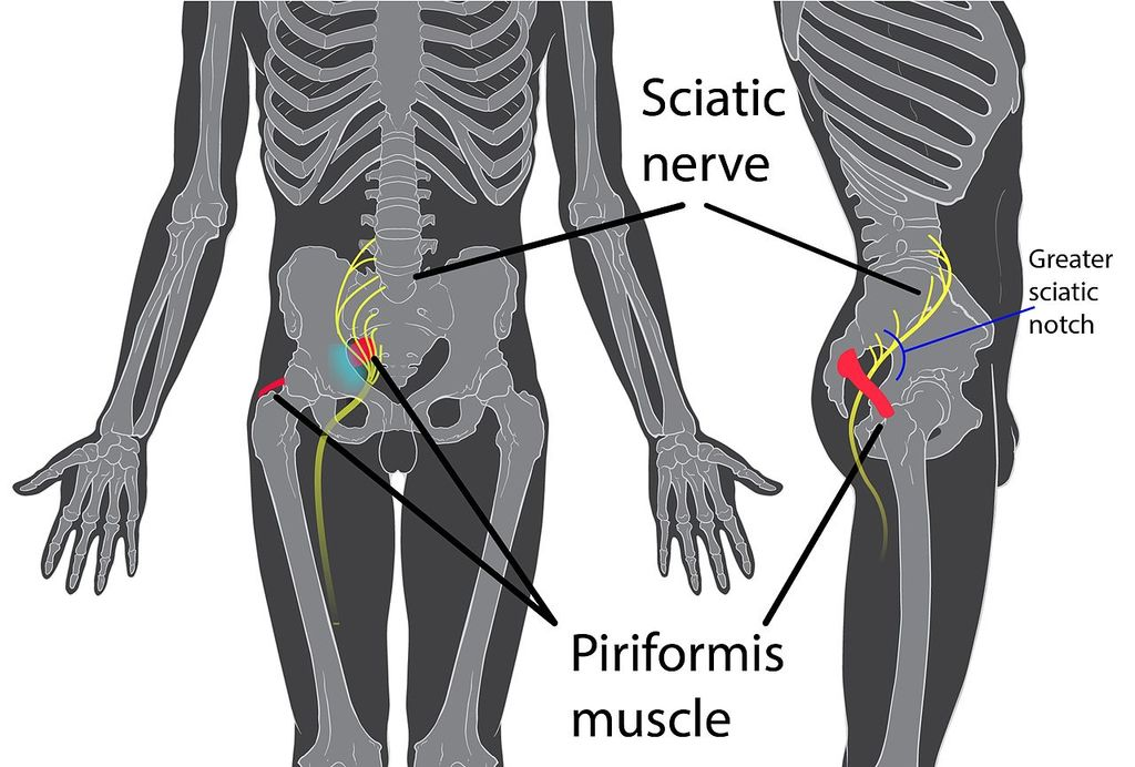 TENS Unit Placement for Sciatica